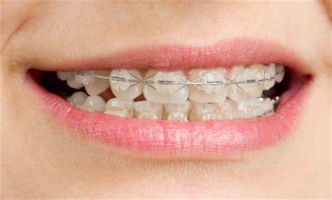 apparecchio denti interno costi orthodontic braces