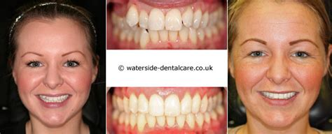tooth straightening waterside dental care