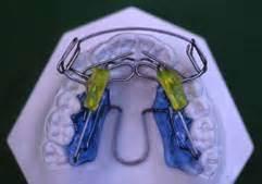 apparecchi dentali mobili ortodonzia mobile appunti