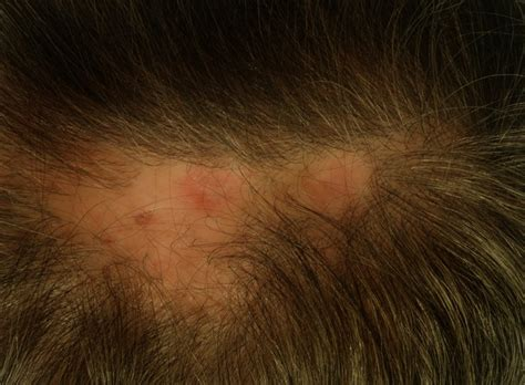 scalp itching and sores pictures of scalp sores pictures photos