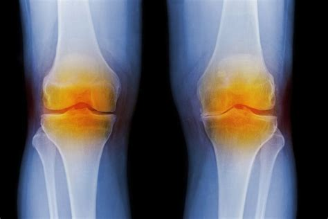 Can Person With Knee Replacement Get Ionic Foot Detox by Knee Replacement Surgery Treatment Of Severe Arthritis