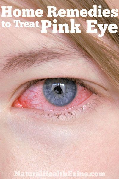 1000 ideas about treating pink eye on pink