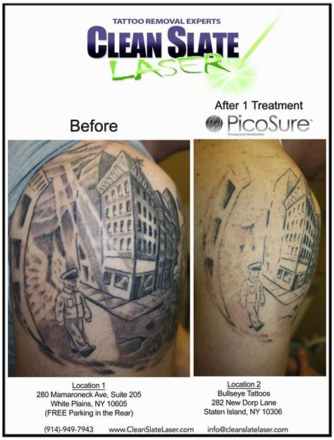 clean slate tattoo removal clean slate laser removal 26 photos 28 reviews
