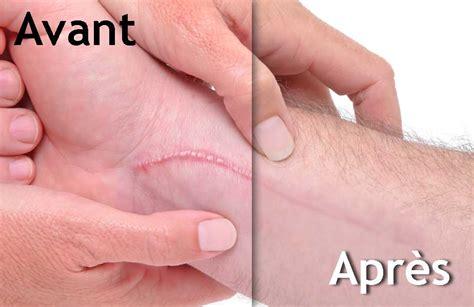 tattoo sourcil quebec clinique param 233 dicale kc maquillage permanent tatouage