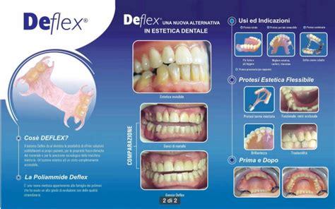 costo protesi mobile protesi mobile centro dentale impladentcentro dentale