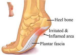 plantar fasciitis it s a real in the foot knee hip