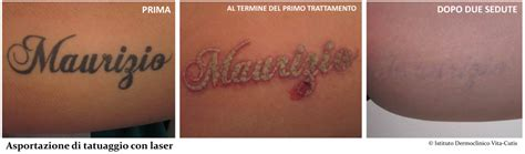 laser tattoo di bandung rimozione tatuaggi istituto dermoclinico vita cutis