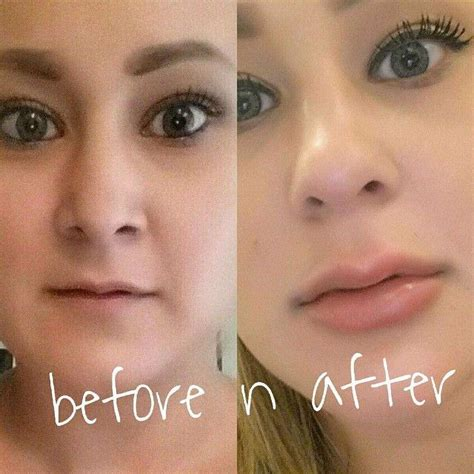 injection tattoo removal before and after picture of syringe of juvederm to the