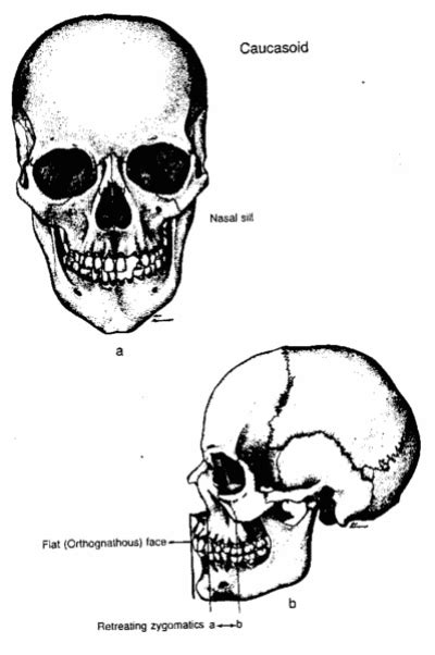 Racial differences in skull shape. | Skull, Biology
