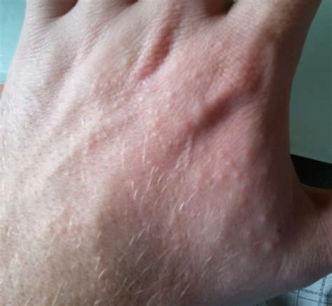 itchy bumps on hands that spread ichey small lump inside lump on roof of mouth pictures