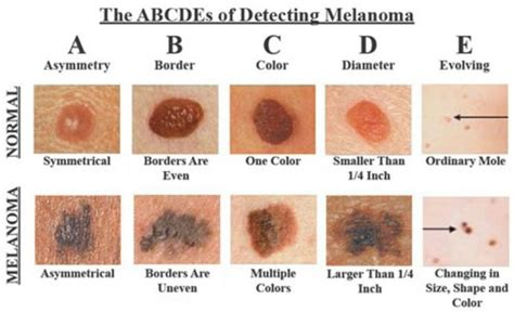 Extremely Light Headed by How To If Those Moles Are Symptoms Of Skin Cancer