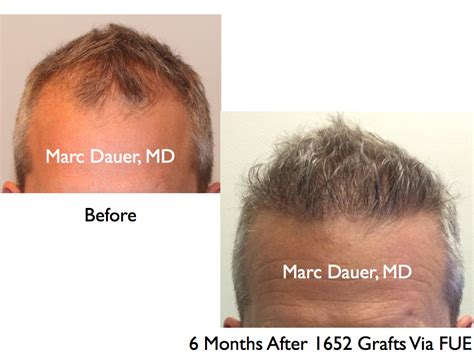 hair transplant month by month fue hair transplant results and donor zone after 6 months