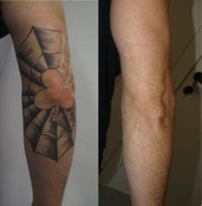 tattoo removal before and after uk laser removal laser removal u medispa