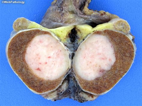 testicolo mobile sintomi webpathology a collection of surgical pathology images
