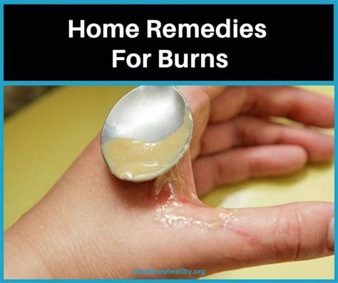 7 best images about burn remedy on home