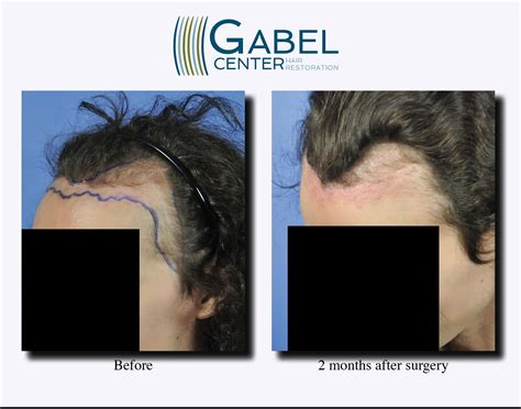 hair transplant month by month pictures 2 months after surgery left view gabel hair