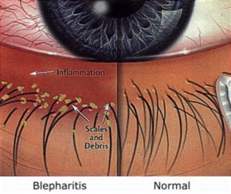 caring for your eyelash extensions my salon website
