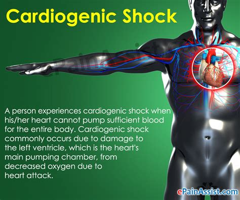 Shock It Cardiogenic Shock Treatment Prevention Symptoms Signs