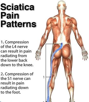 how to treat sciatica pain in leg the ancient art of acupuncture what you should know