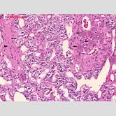 sympathetic-ganglion-histology