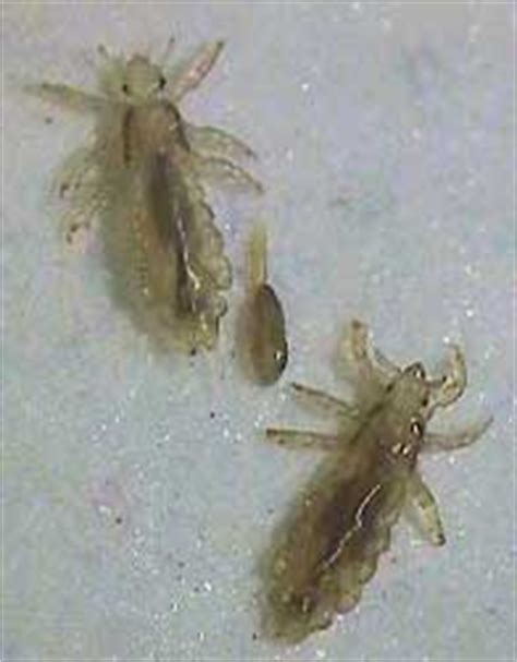 Can Lice Survive On Pillows by Guide To Removing Lice Safely Nebraska