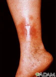 imagenes de manchas rojas en los pies el club de blanco dermatitis y 250 lceras por estasis