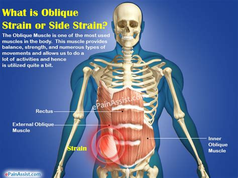 oblique strain or side strain causes symptoms treatment recovery period