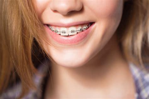 best braces should i get braces as an