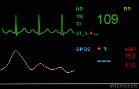 normal pulse what is considered a normal rate with pictures