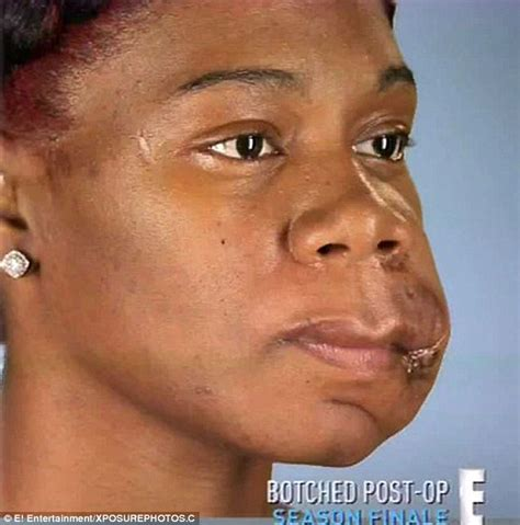 by nature before and after botched arizona woman with facial deformity has life changing