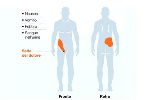 dolore interno fianco sinistro calcoli renali e coliche renali sintomi cause e rimedi
