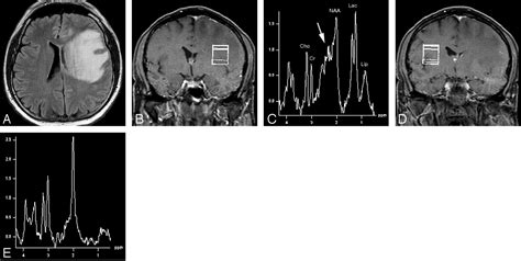 n acetylaspartate creatine metabolite findings in tumefactive demyelinating lesions