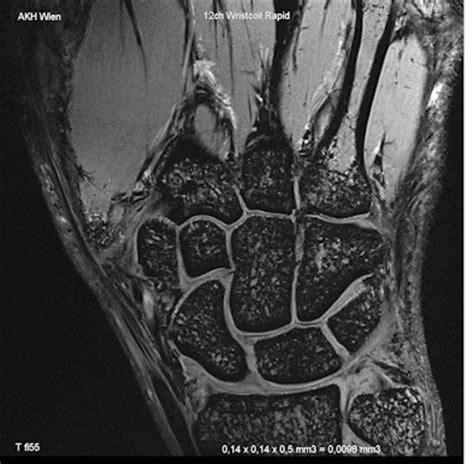 Mri 7 Tesla Radiology News Education Service