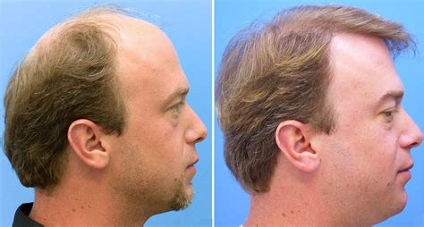 hair transplant in delhi fut and fue hair transplant in