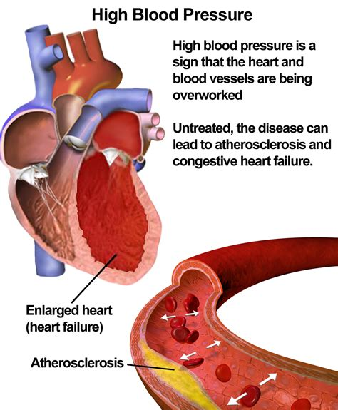 blood pressure memory impairment may be due to high blood pressure doctor tipster