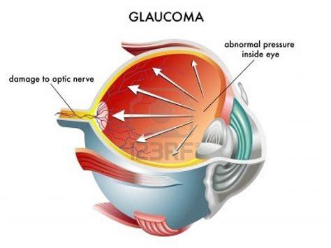 glaucoma treatment glaucoma chronic open angle causes symptoms treatment glaucoma chronic open angle