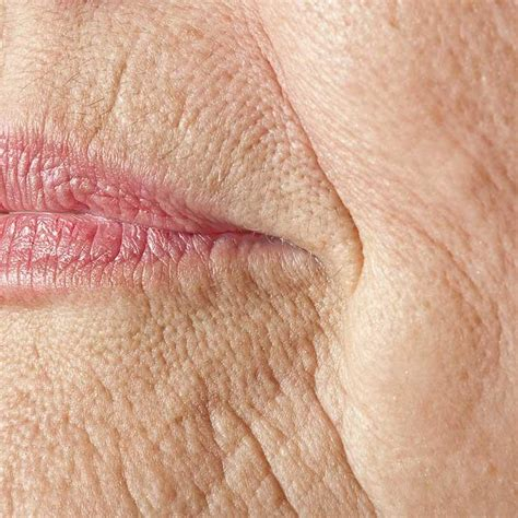 crepey skin on arms 8 places your face shows its age and diy solutions to