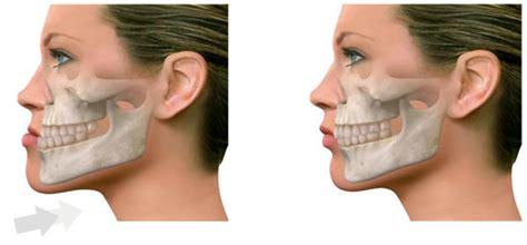 andrea janeiro problema cara cirug 237 a ortogn 225 tica maxilofacial barcelona maxilodexeus