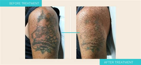 school for tattoo removal 1 laser removal sydney removal institute