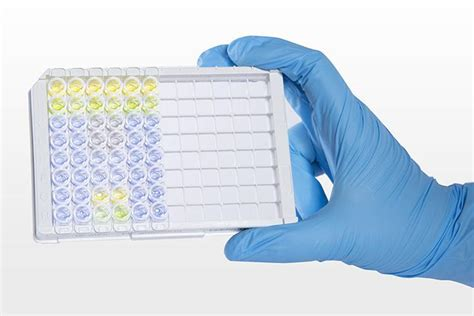 test elisa clinical chemistry reagents ams alliance