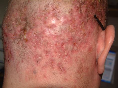 folliculitis treatment area newhairstylesformen2014