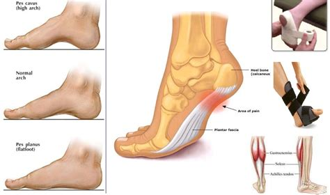 Planter Of Foot by Dr Galland 187 Pes Planus