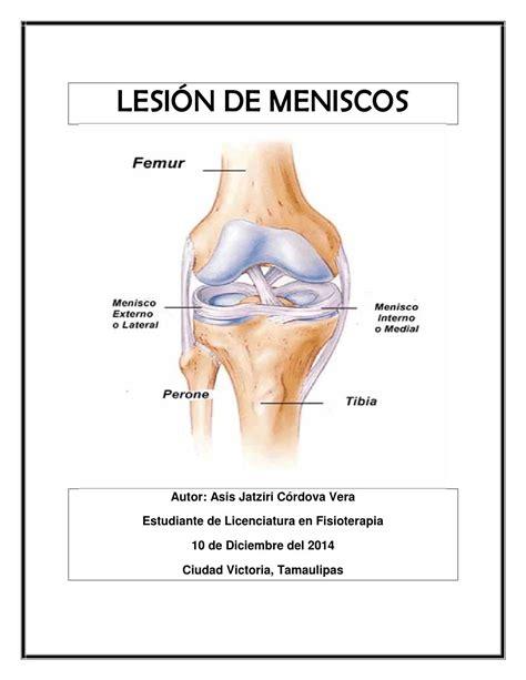 menisco interno lesi 243 n de meniscos by asis issuu