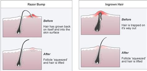 home remedies for ingrown hair removal treat
