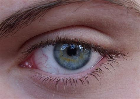 Thailand Eye Where To Get Lasik Surgery In Bangkok Thailand