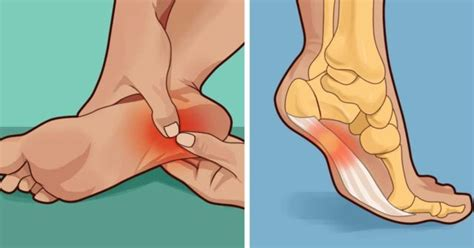 how to treat and prevent plantar fasciitis at home our