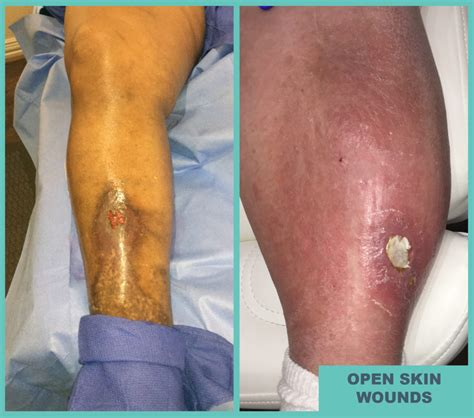open sore on open sores on your leg arlington tx open leg skin wound treatment