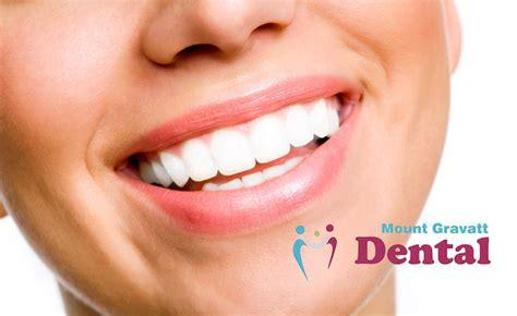 mt gravatt dental centre deals reviews coupons