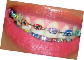 braces color ideas 81 best color ideas for braces images on