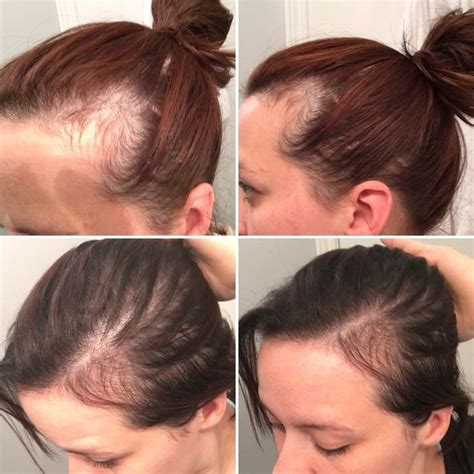 Hairstyles For Hair Loss by Postpartum Hair Loss Hairstyles Hair